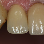 Cosmetic Crown Warren After