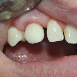 Implant Mellisa After