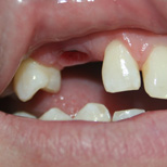 Implant Mellisa Before