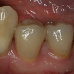 Restorative Cerec After Dave