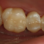 Restorative Cerec Composite After Karyn