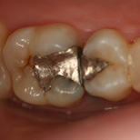 Restorative Cerec Composite Before Karyn