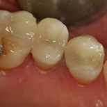 Restorative Cerec Delwyn After