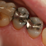 Restorative Cerec Delwyn Before