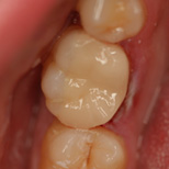 Restorative Cerec Dental Filling After Sam